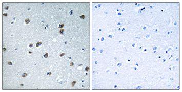 KLHL29 Antibody (PA5-39219)
