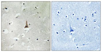 LRP10 Antibody (PA5-39229)