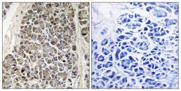 MRPS21 Antibody (PA5-39240)