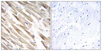 MRPL33 Antibody (PA5-39244)