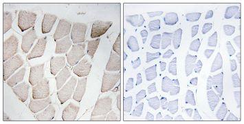 MYOM1 Antibody (PA5-39259)