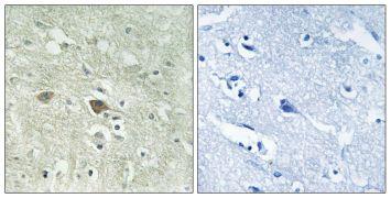 NDUFV3 Antibody (PA5-39272)
