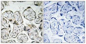 MT-ND1 Antibody (PA5-39276)