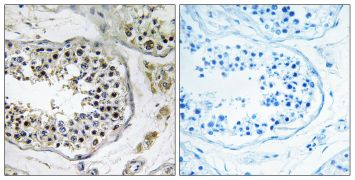 NBPF4 Antibody (PA5-39293)