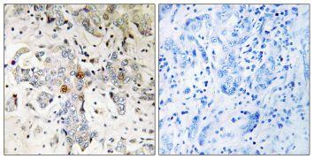 ZCCHC17 Antibody (PA5-39319)