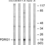 PDRG1 Antibody (PA5-39326)