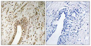 PHF3 Antibody (PA5-39337)