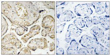 APOBEC3D/APOBEC3F Antibody (PA5-39357)