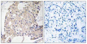 NDRG3 Antibody (PA5-39365)