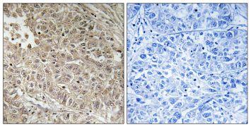 MRP13 Antibody (PA5-39376)
