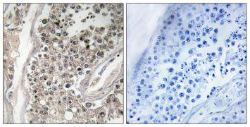RAB3GAP1 Antibody (PA5-39385)