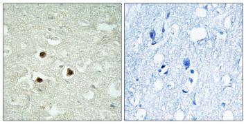RAB3IP Antibody (PA5-39387)