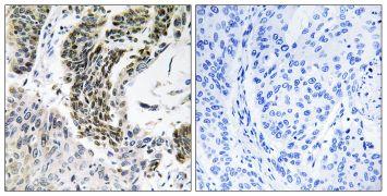 RREB1 Antibody (PA5-39410)