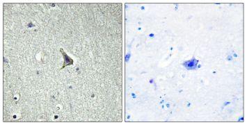 GPR137C Antibody (PA5-39616)