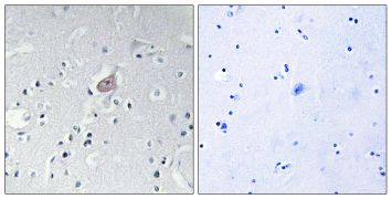 Phospho-c-Abl (Tyr393, Tyr412) Antibody (PA5-39687)