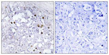 Phospho-HNF4A (Ser313) Antibody (PA5-39695)