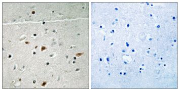 Phospho-LIMK2 (Ser283) Antibody (PA5-39719)
