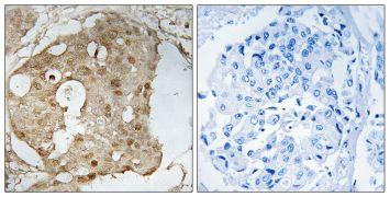 Phospho-p53 (Ser366) Antibody (PA5-39720)
