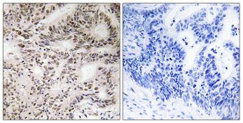 Phospho-A-Raf (Ser299) Antibody (PA5-39728)
