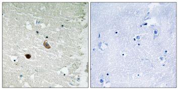 CaMKII beta/gamma/delta Antibody (PA5-39732)
