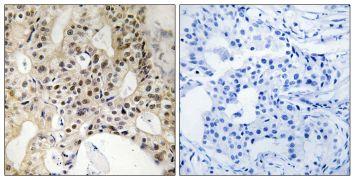 LATS1/LATS2 Antibody (PA5-39741)