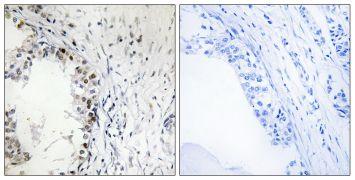 Phospho-MNK1 (Thr250) Antibody (PA5-39746)