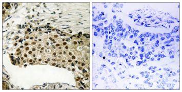 Phospho-MSK1 (Ser212) Antibody (PA5-39747)