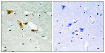 APLF Antibody (PA5-39776)