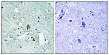 Phospho-IP3 Receptor 1 (Ser1764) Antibody (PA5-39790)