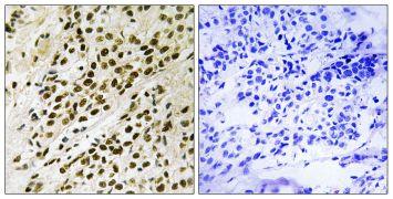 Phospho-PRAK (Thr182) Antibody (PA5-39793)