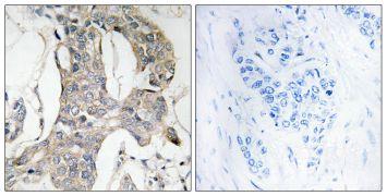 Phospho-MKP1/MKP2 (Ser296, Ser318) Antibody (PA5-39795)