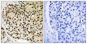 Phospho-NFATC4 (Ser168, Ser170) Antibody (PA5-39798)
