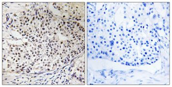 Phospho-RAD51 (Thr309) Antibody (PA5-39808)