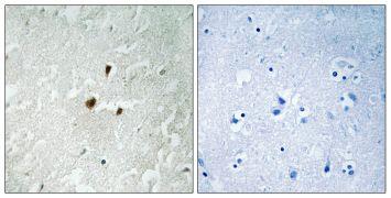 Phospho-RRN3 (Ser649) Antibody (PA5-39814)