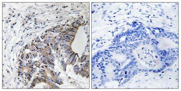 Phospho-FHIT (Tyr114) Antibody (PA5-39824)