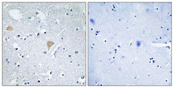 CIT Antibody (PA5-39865)