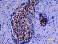 Kallikrein 11 Antibody (PA5-47164)