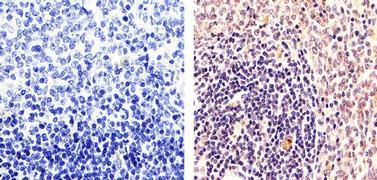 PARP Antibody (PA5-16452)