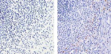 MMP9 Antibody (PA5-16509)