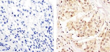 MEK1 Antibody (PA5-16556)