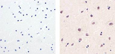 PARP Antibody (PA5-16561)