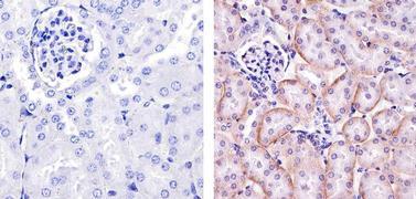 PDGFRA Antibody (PA5-16742)