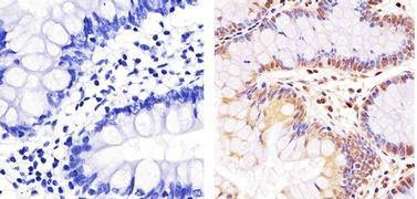 NFkB p65 Antibody (PA5-16758)