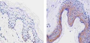 Claudin 1 Antibody (PA5-16833)