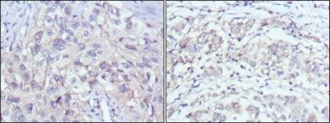 PAK2 Antibody (MA5-15527)