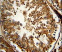 PAOX Antibody (PA5-25758)