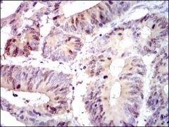 PBK Antibody (MA5-17144)