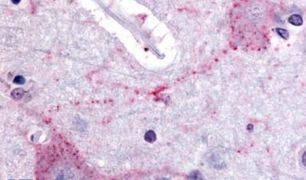 PCSK6 Antibody (PA5-32967)