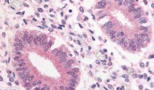 PDE3A Antibody (PA5-32971)