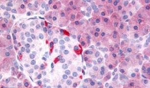 PDE7B Antibody (PA5-32977)